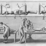 giovanni aldini galvanism experiment